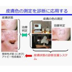 ファジイ推論を用いた皮膚の色による皮膚病診断